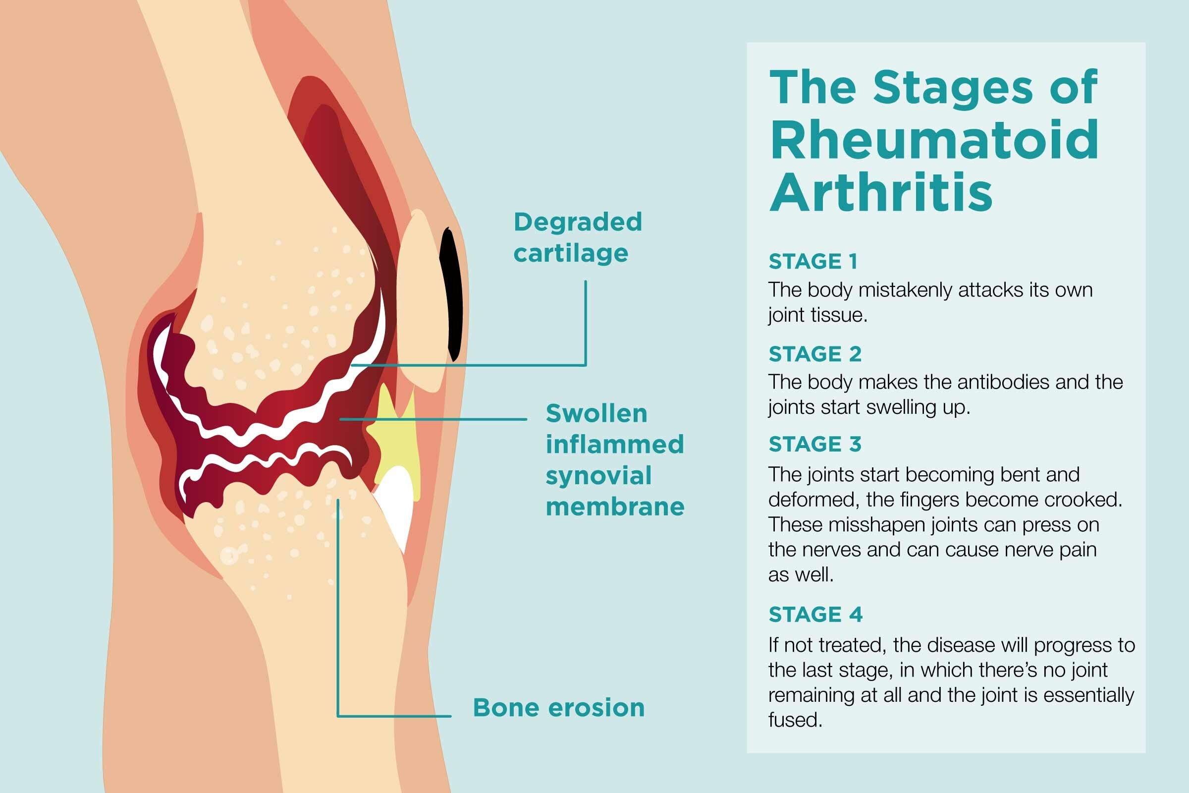 Что такое ревматоидный артрит общие сведения о болезни